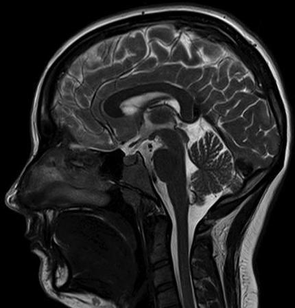 Показания МРТ головного мозга