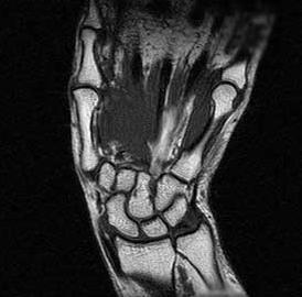 Магнитно-резонансная томография лучезапястного сустава