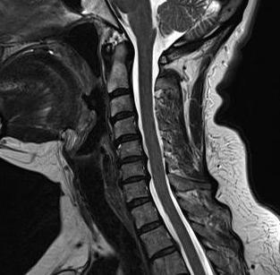 Магнитно-резонансная томография шеи