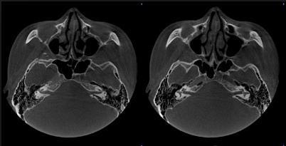 Компьютерная Томография височных костей